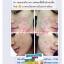 เอนโดแคร์เซรั่ม Endocare Serum thumbnail 5
